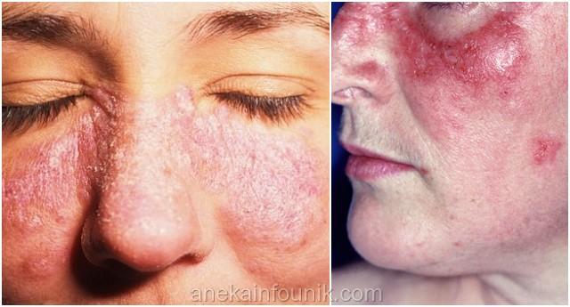 Penyakit Lupus Photos Penyakit Lupus Dan Cara