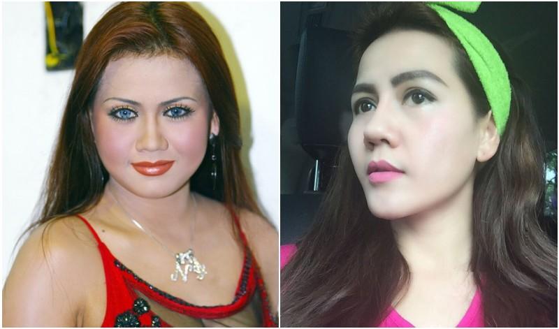 Foto Nita Talia sebelum dan sesudah operasi plastik. (Kapan Lagi ...