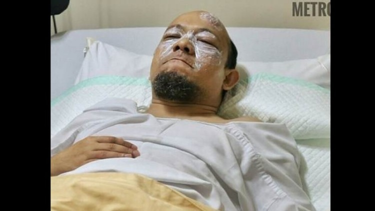 Novel Baswedan dijenguk Ketua KPK