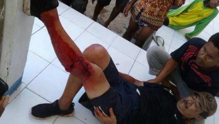 Betis wisatawan Singapura digigit Komodo