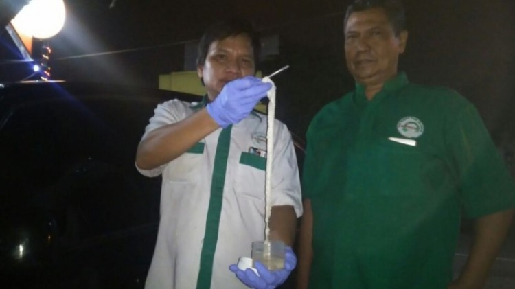 Cacing pita ditunjukkan tim Fakultas Kedokteran UISU Medan